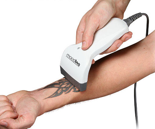 programmable-tattoo-system